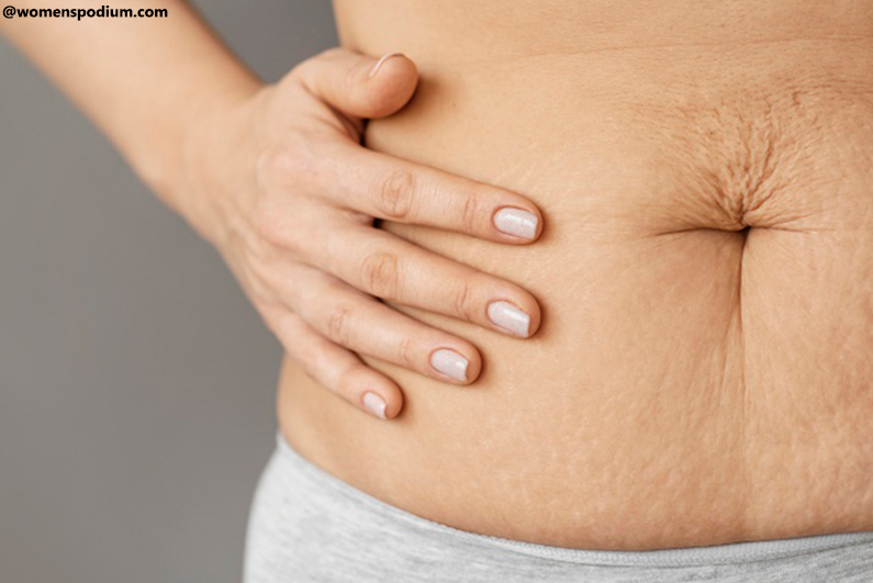 Where Cellulite Affects the Most?