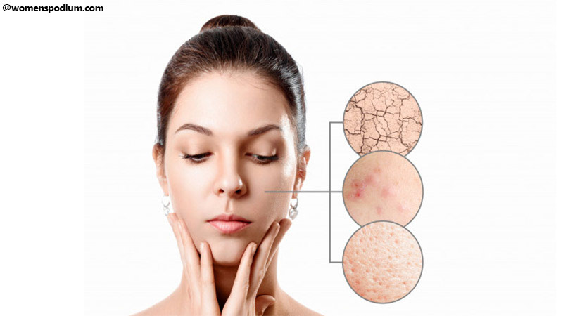 Identify Type of Skin